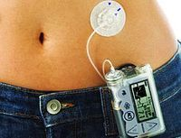 Insulin pumps lead to lower A1C levels for insulin-dependent type 2s