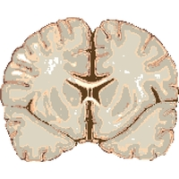 Blood Sugar Extremes Can Affect Young Brains